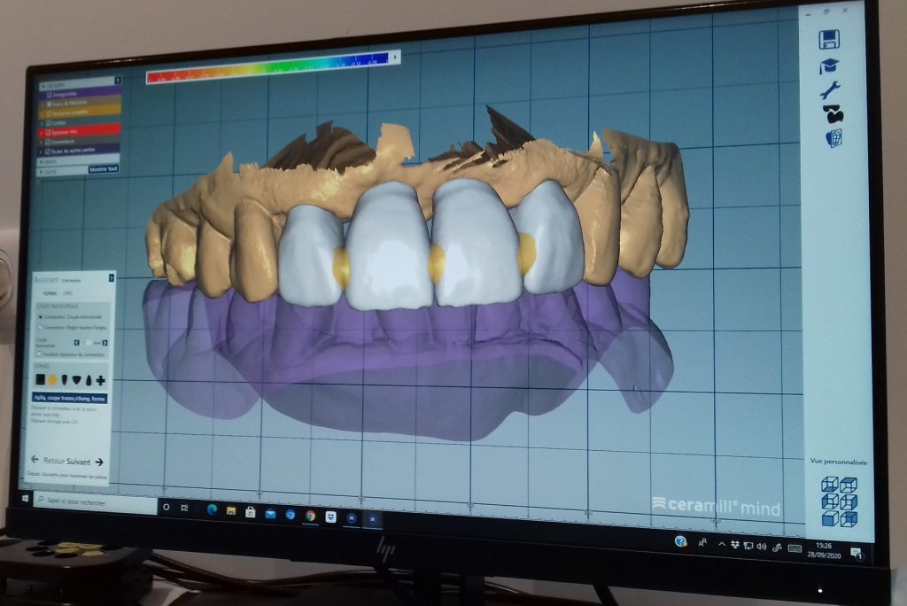 prothese dentaire numerique