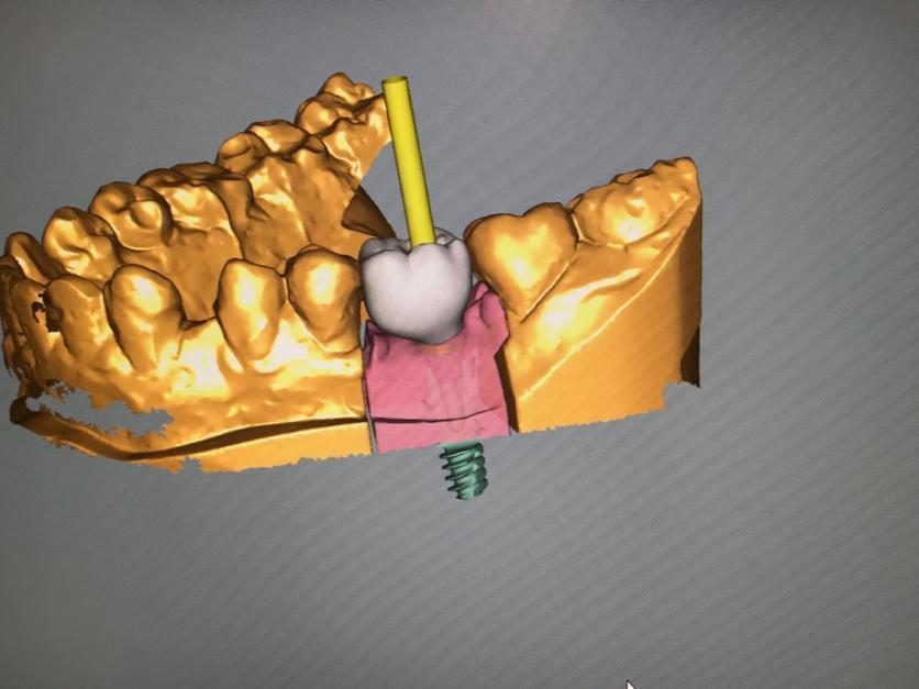 axe prothese dentaire